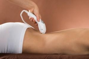 ¿Qué hay que tener en cuenta al hacerse la depilación láser?